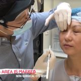 1 Agnes Eye Revo Dr Lee Mun Heng Cambridge Medical Group Consultaton