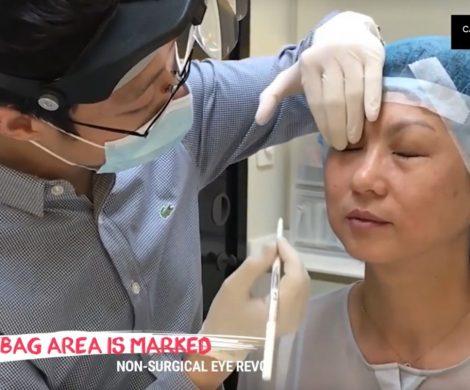 1 Agnes Eye Revo Dr Lee Mun Heng Cambridge Medical Group Consultaton