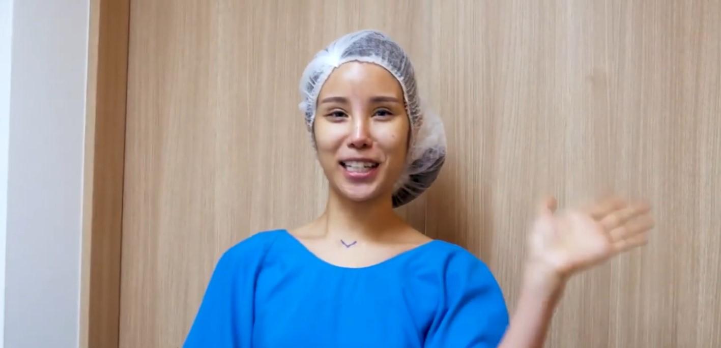 Vanessa Breast Lift Surgery Pre-Operation Dr Samuel Ho Allure Plastic Surgery 2